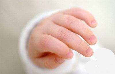宝宝手指甲 健康晴雨表