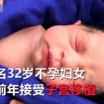 不孕症妇女移植死者子宫 成功受孕生下女宝