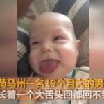 """男婴天生""""巨舌"""",是正常孩子的两倍大!"""