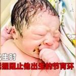 是个狠人!越南男婴手握节育环出世