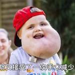 男童脸上长囊肿,走路、吃饭都很难